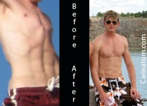 Pectus-Carinatum before and after